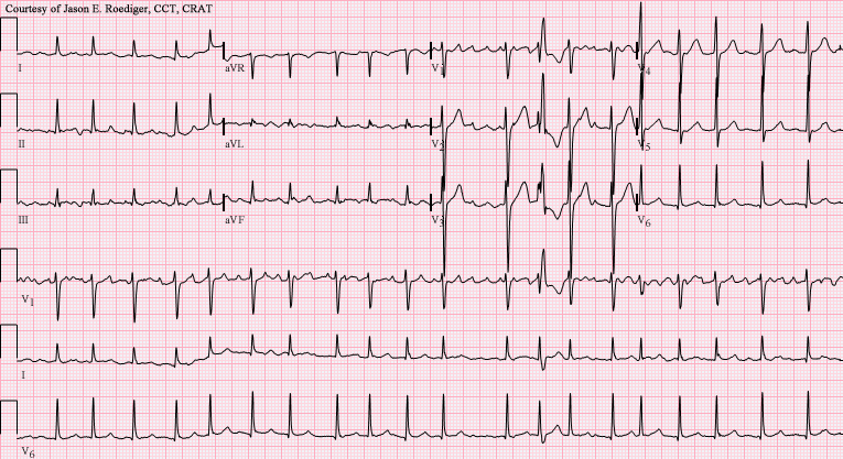 afib vs aflutter - Atrial fibrillation ECG (with Ashmann phenomenon)